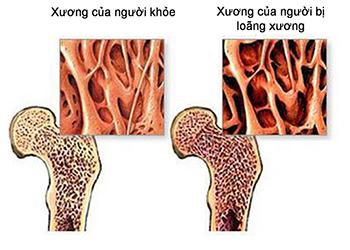 Hình ảnh so sánh xương người khỏe và người bị loãng xương