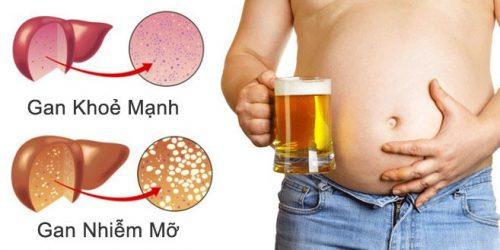 Các dấu hiệu và phương pháp chữa gan nhiễm mỡ