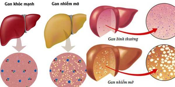 Những tác hại của việc gan nhiễm mỡ